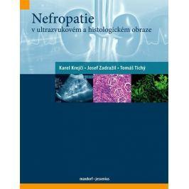 kolektiv autorů: Nefropatie v ultrazvukovém a histologickém obraze