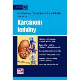 kolektiv autorů: Karcinom ledviny